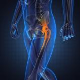 avoid hip surgery